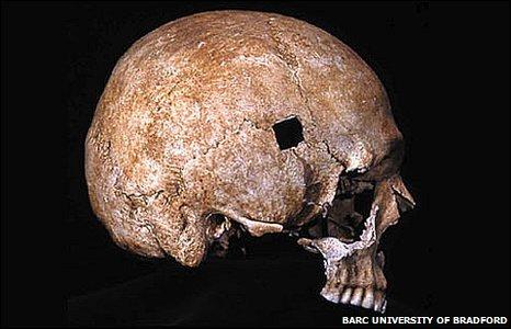 Κρανίο στο οποίο απεικονίζεται θανατηφόρο πλήγμα από βέλος Bowkin_πηγή Bradford University