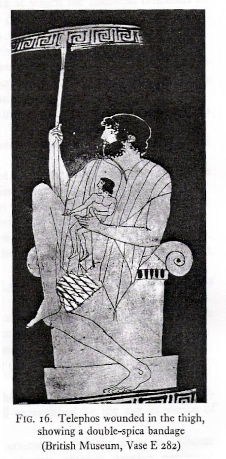 Ο Τήλεφος πληγωμένος στον μηρό_Βρετανικό μουσείο_ βάζο Ε282