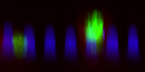 """Side view of the """"micro bed of nails"""". Visible in blue are the micro columns, and in green the epithelial cells, one of which (right) has hauled itself upwards in order to divide (micrograph). (Photo: Sorce B et al. Nature Communications 2015)"""