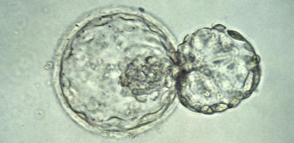 A human embryo at the blastocyst stage, about six days after fertilization, viewed under a light microscope. Credit: Wellcome Images