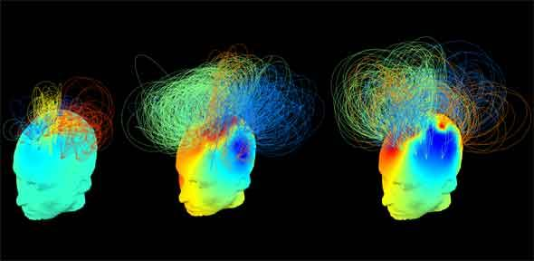 Electrical brain 'signatures'. The patient to the left is in a vegetative state; the patient in the middle is also in a vegetative state but their brain appears as conscious as the brain of the healthy individual at the right. Credit: Srivas Chennu