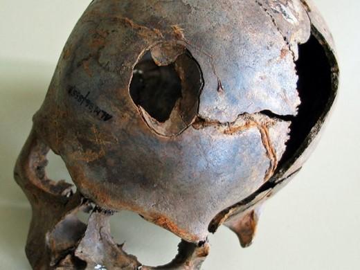 Το εικονιζόμενο κρανίο που ανεσύρθη στην κοιλάδα Tollense δείχνει ξεκάθαρα αμβλύ βίαιο τραύμα, προερχόμενο πιθανώς από ρόπαλο. Πηγή: Κρατική Υπηρεσία για την Διατήρηση Πολιτισμού & Πολιτιστικής Κληρονομιάς_ Μεκλεμβούργου - Δυτικής Πομερανίας _Τμήμα αρχαιολογίας_D. Jantzen