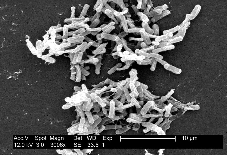 Scanning electron micrograph of Clostridium difficile bacteria from a stool sample. CDC/ Lois S. Wiggs/wikimedia