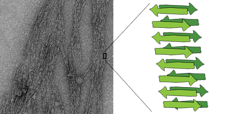 The schema of a sheet structure comprising several shorter peptide chains is shown in green. During their experiments, scientists discovered these structures in the form of long fibres (left: electron microscope image). (Image: ETH Zurich / Jason Greenwald)